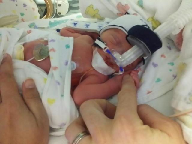 Our Twin Birth Story